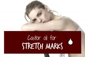 castor-oil-for-stretch-mark-header